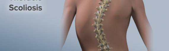 5 Things to Know About Scoliosis